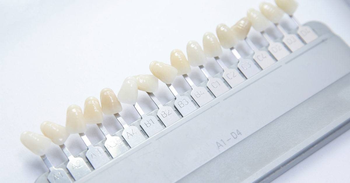 dca-blog_article-14_dental-veneers_1200x630